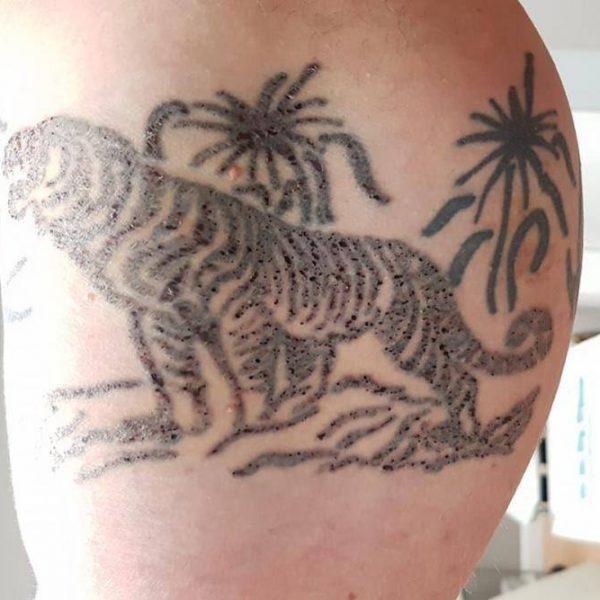 tattoo-removal-4