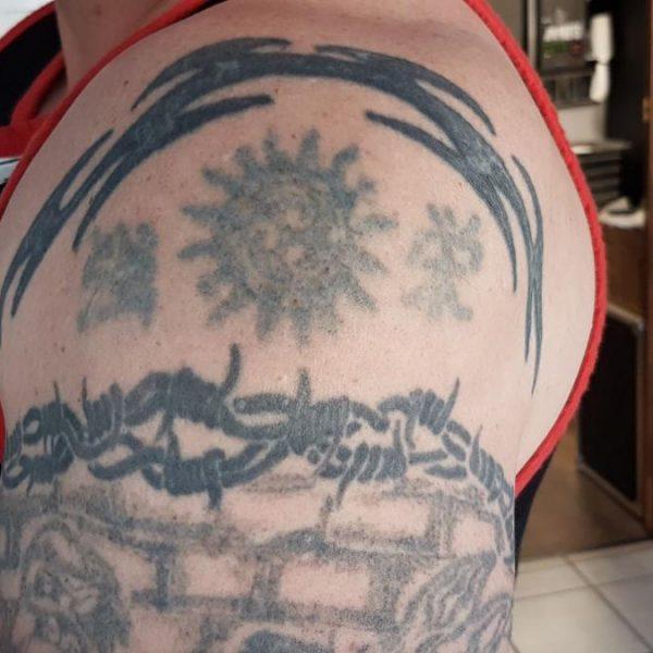 tattoo-removal-8