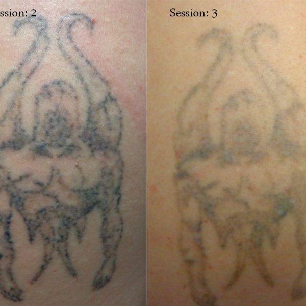 tattoo-removal-9